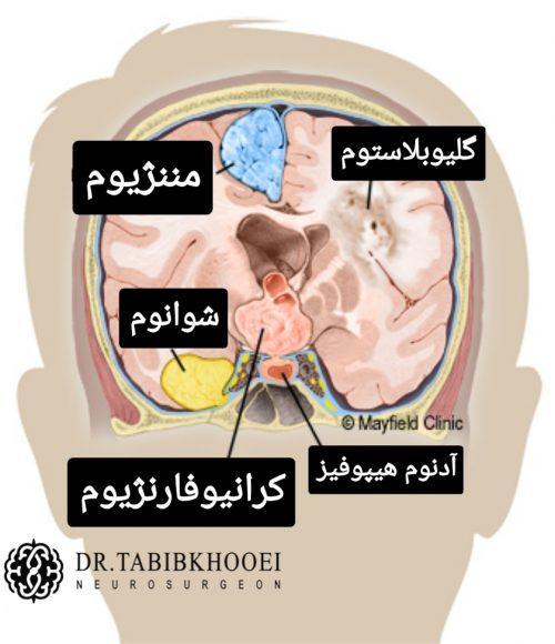 انواع و منشا متفاوت تومورهای مغزی