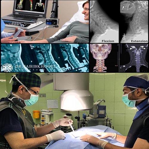 بهترین جراح دیسک گردن