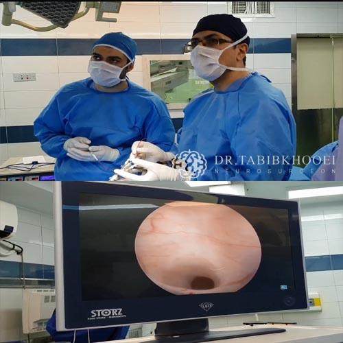 جراحی آندوسکوپی هیدروسفالی