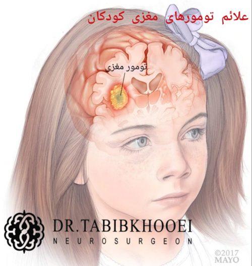 شایع ترین تومور مغزی در کودکان