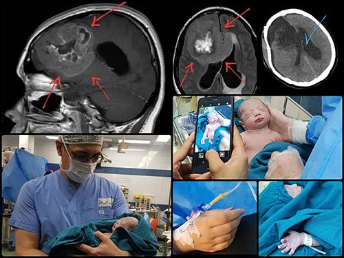 تومور مغزی در بارداری
