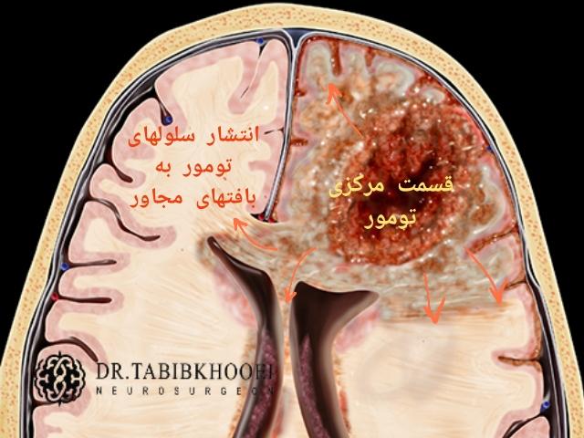 تومور گلیوبلاستوم