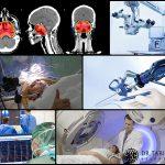 درمان تومور مغزی