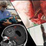 روز متفاوت اتاق عمل جراحی اعصاب