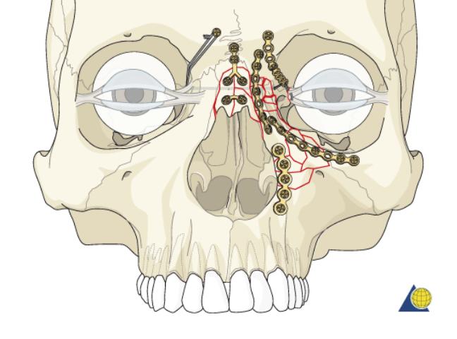 بازسازی عناصر استخوانی اطراف چشم