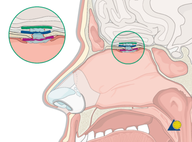 ترمیم سقف سینوسهای اطراف بینی در قاعده جمجمه