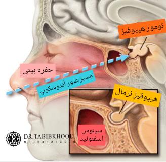 تومورهای هیپوفیز