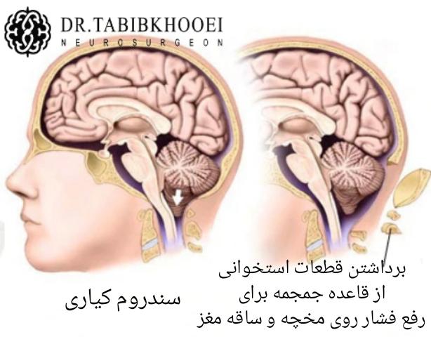 جراحی سندروم کیاری