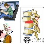 جراحی شکستگی ستون فقرات در 2 بیمار