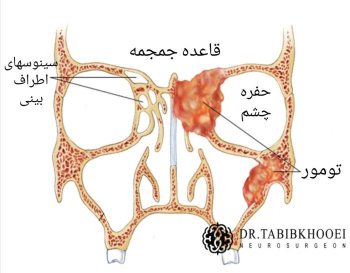 تومورهای سینوسهای اطراف بینی