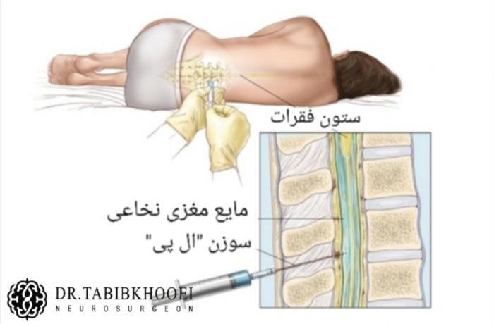 درمان غیرجراحی نشت مایع مغزی نخاعی