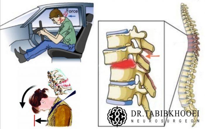 شکستگی مهره کمر بر اثر تصادف