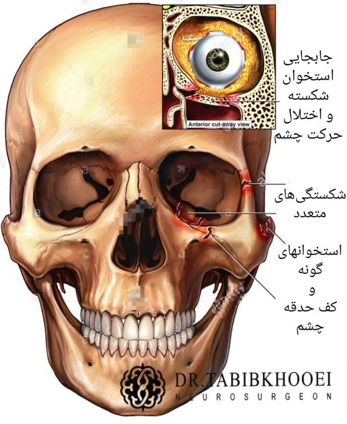 شکستگی های حدقه چشم