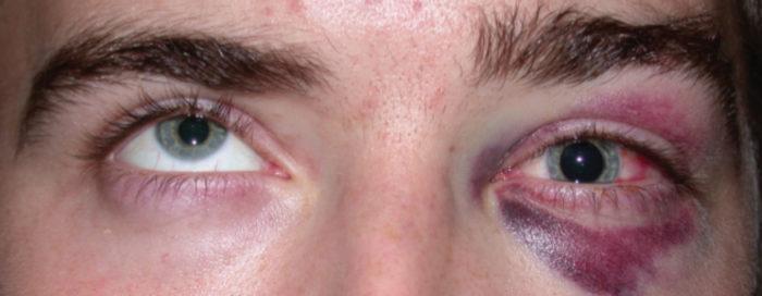 شکستگی چشم