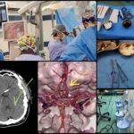 جراحی آنوریسم مغزی شریان رابط قدامی