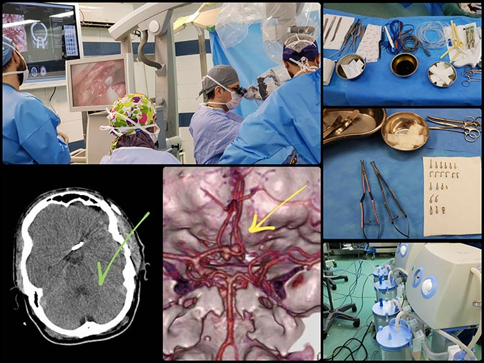 جراحی آنوریسم مغزی