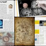 نویگیشن در جراحی های مغز