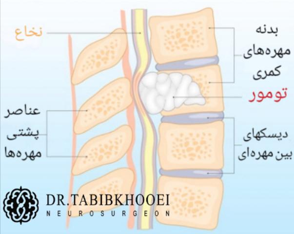 تخریب مهره توسط تومور و فشار روی نخاع