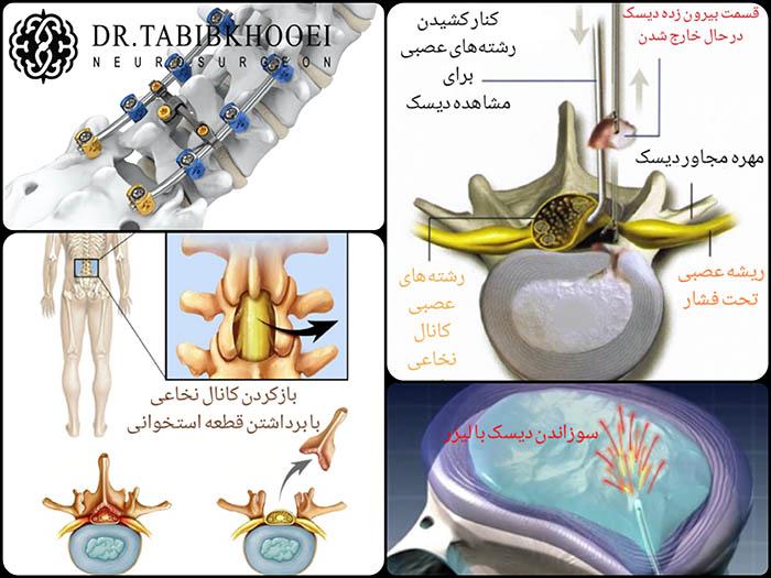 درمانهای جراحی کمردرد