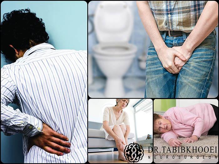 موارد ضروری در مراجعه به پزشک به دنبال درد کمر