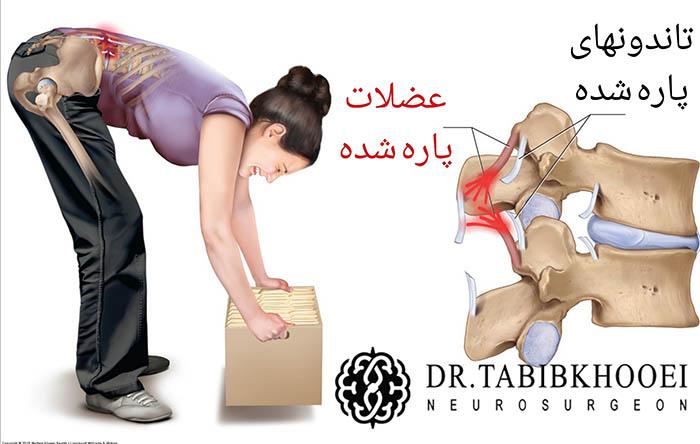 کشیدگی عضلات کمر