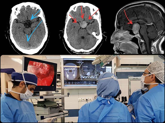 جراحی تومور هیپوفیز از طریق بینی