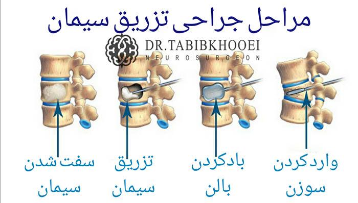 جراحی تزریق سیمان در مهره