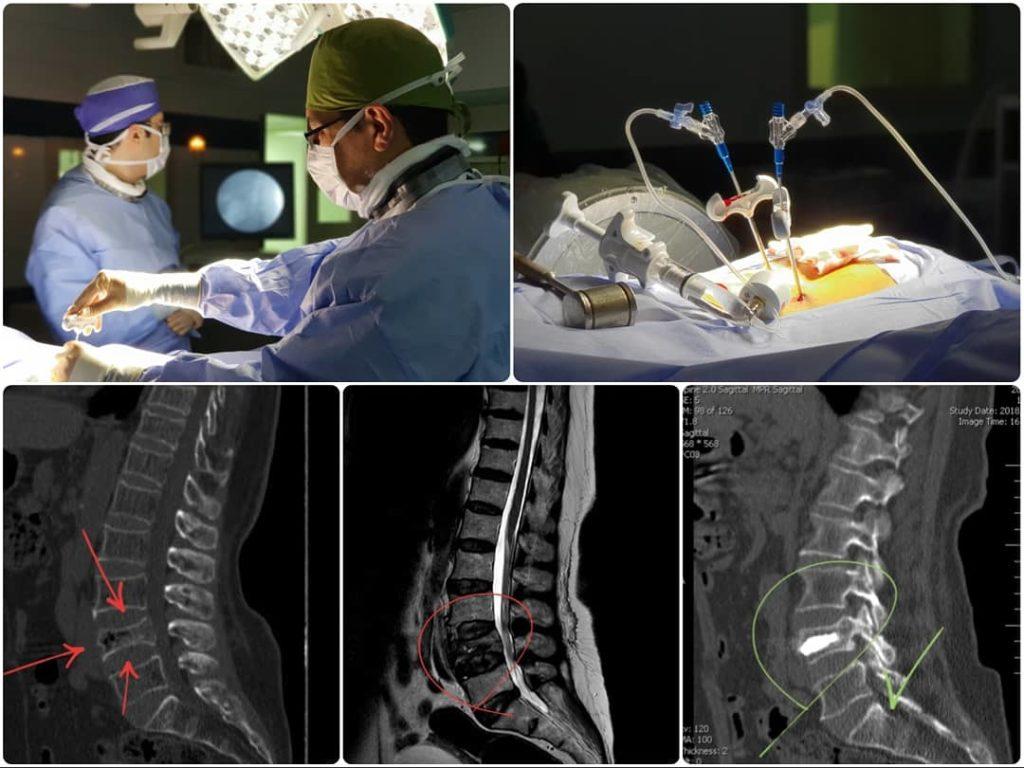 جراحی کیفوپلاستی