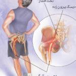 اقدامات قبل از جراحی دیسک کمر