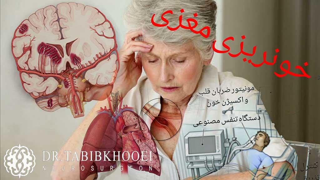 خونریزی مغزی