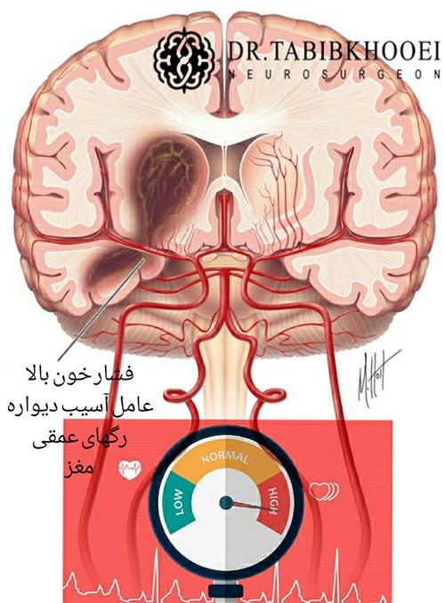 علت خونریزی مغزی
