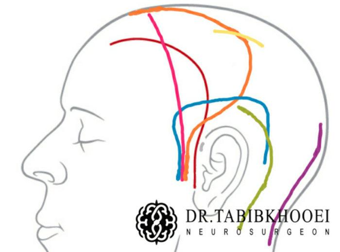 انواع برشهای پوستی در جراحی تومورهای مغزی