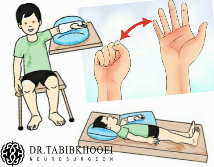 مراقبتهای بعد از عمل جراحی عصب دست