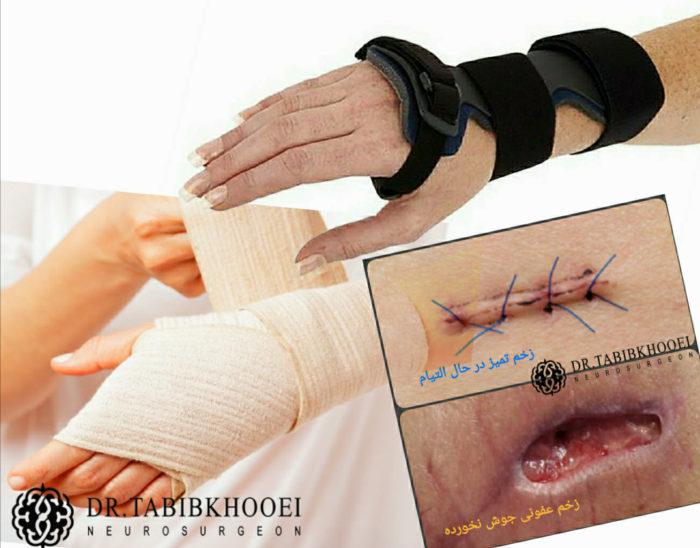 مراقبت بعد از عمل جراحی مچ دست
