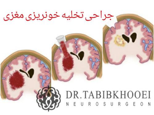 جراحی خونریزی مغزی