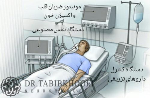 درمان غیرجراحی خونریزی مغزی