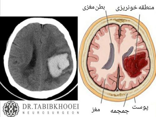 تشخیص خونریزی مغزی با انجام سی تی اسکن