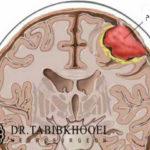 شایعترین تومور مغزی خوشخیم