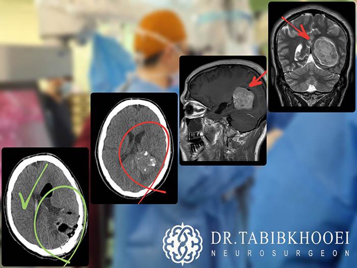 تومور مغزی داخل بطنی