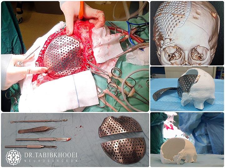جراحی کرانیوپلاستی