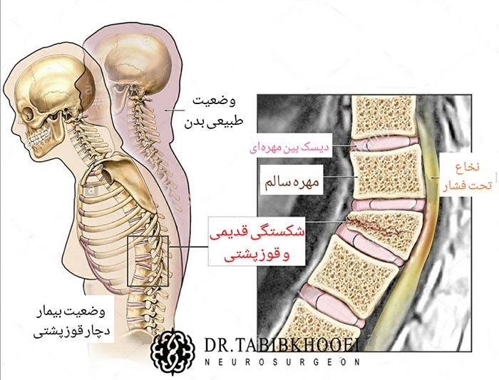 آسیب نخاعی در اثر ایجاد قوز در مهره شکسته درمان نشده
