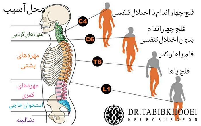 از دست رفتن عملکرد نخاع زیر سطح آسیب نخاعی در محلهای مختلف