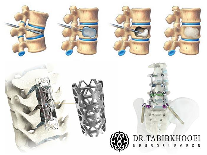درمانهای جراحی شکستگیهای ستون فقرات