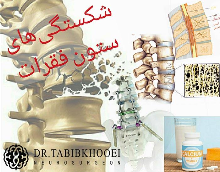 شکستگیهای ستون فقرات , علل , تشخیص , درمان