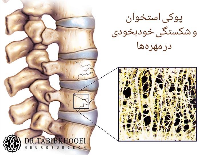 شکستگی خودبخودی به دنبال پوکی استخوان