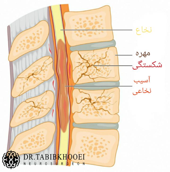 شکستگی مهره و آسیب نخاعی