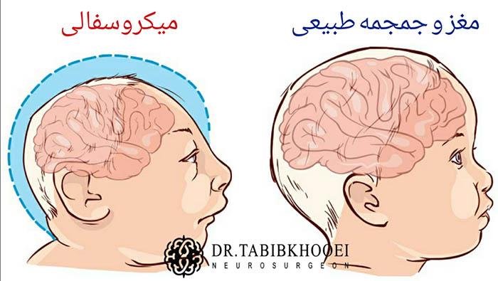 رشد ناکافی مغز و کوچک ماندن جمجمه