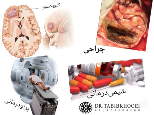 تومور مغزی گلیوم