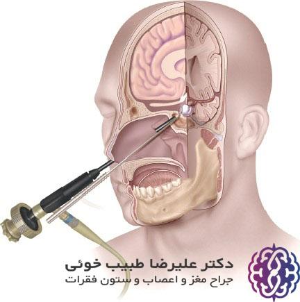 جراحی هیپوفیز به روش آندوسکوپی