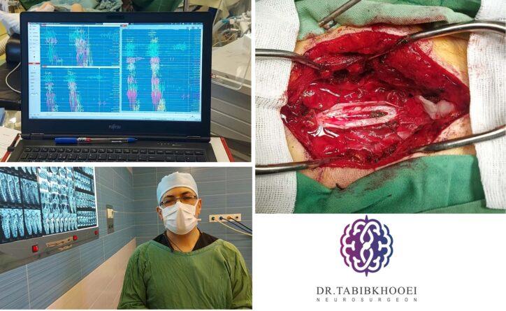 فیلم جراحی تومور نخاعی گردنی